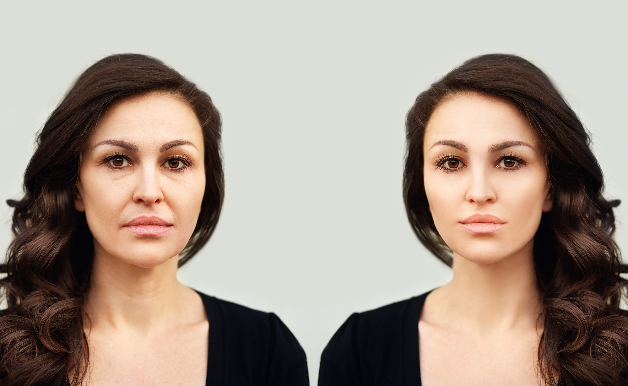 , Anti Wrinkle Treatments