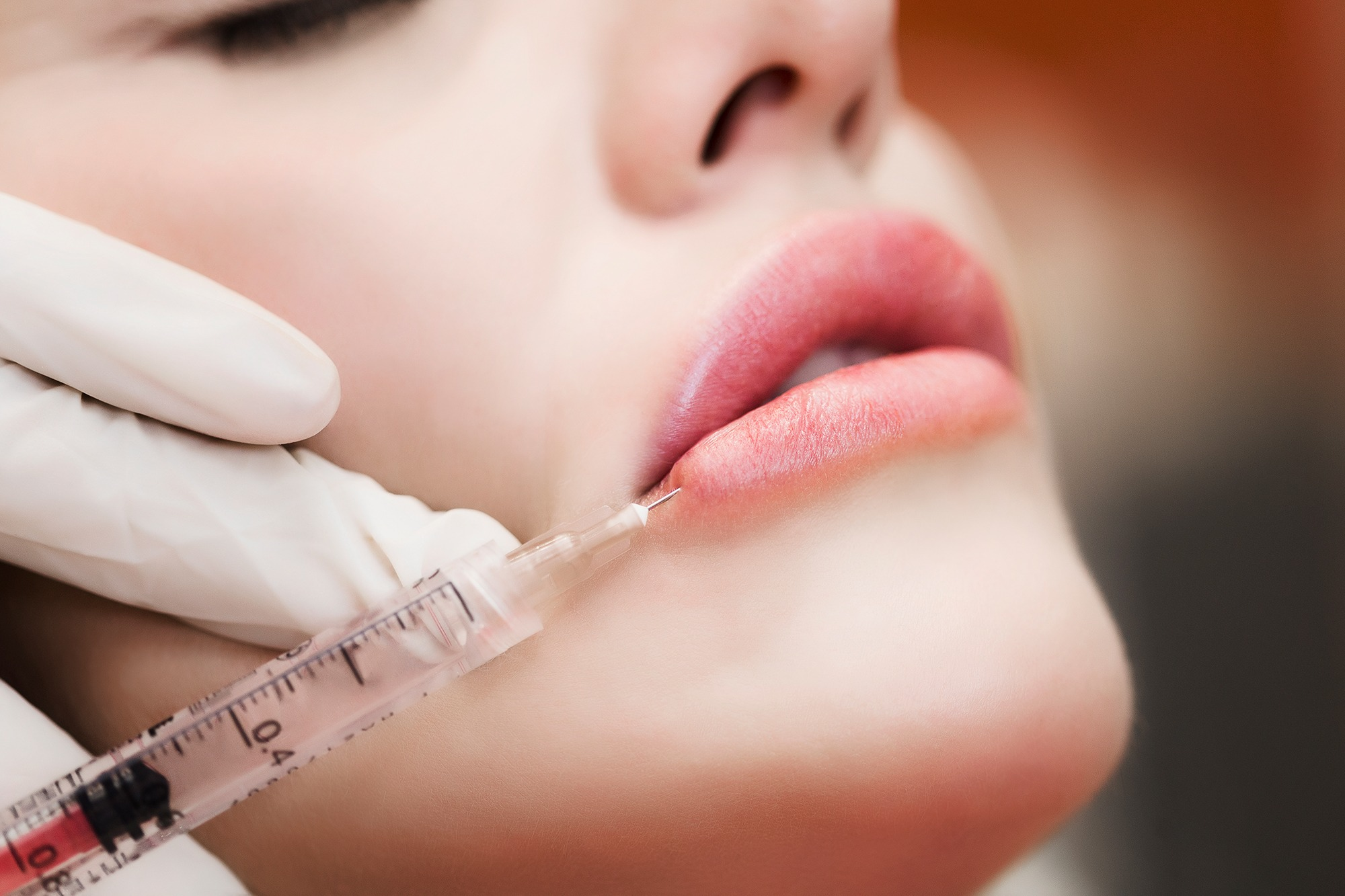 Lip Fillers Guildford | Lip Enhancements Godalming | Facial